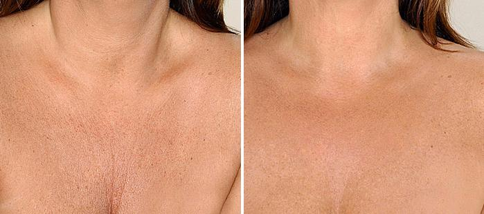 Botox Decolletage (1) cropped