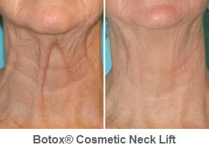 botox-06