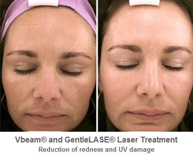 Laser Therapy Facial Rejuvenation Center Medical Spa Of Iowa City
