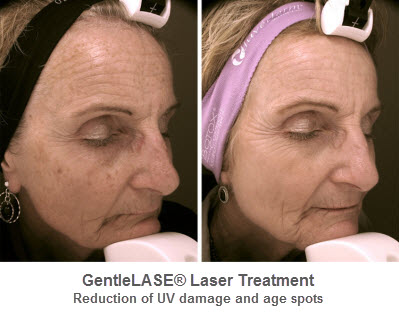 Laser Therapy — Facial Rejuvenation Center & Medical Spa of