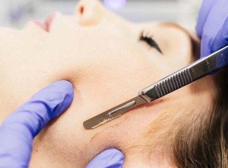 Dermaplaning Facial Rejuvenation Center Amp Medical Spa Of